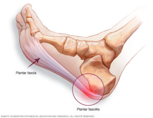 Reflexology for Plantar Fasciitis - picture of foot